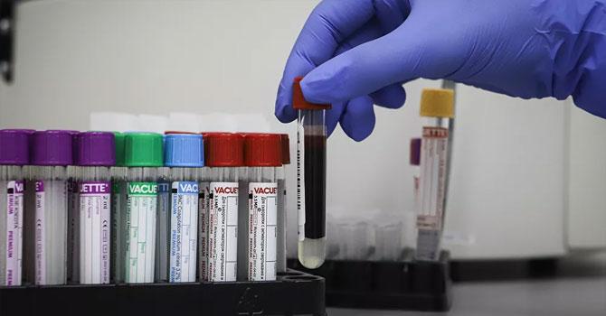 WHO: Koronavirüs salgınında en kötüyü henüz görmedik