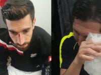 Cizre Spor'a saldırı: Oyuncular darp edildi