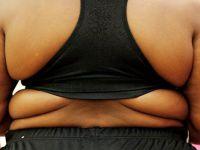 Obezite ameliyatlarında yeni düzenleme