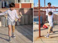 Yeni proteziyle yürümek için kısıtlamada çatıda çalışıyo